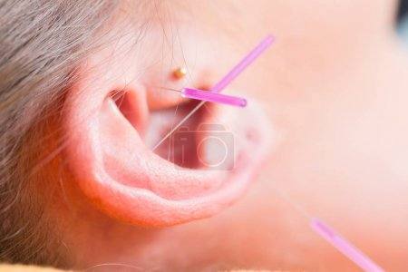 Ear of woman with acupuncture needles