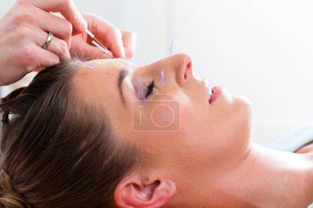 Therapist setting acupuncture needles