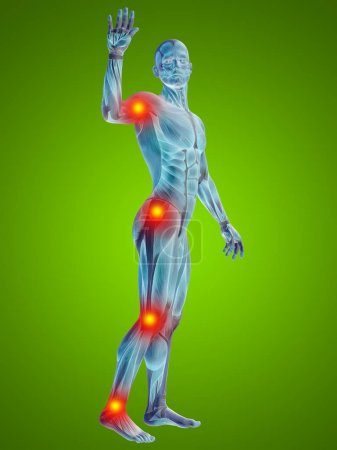 man with articular  pain.