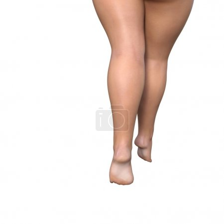fat female legs