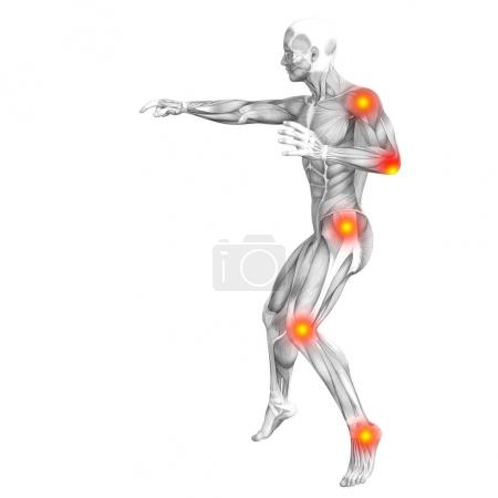 Conceptual human muscle anatomy with red and yellow hot spot inflammation, osteoporosis, sport concept