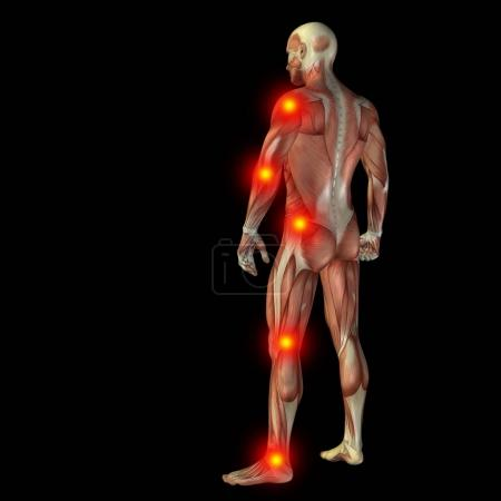 articular or bones pain