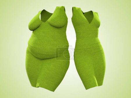 Conceptual overweight obese female dress outfit vs slim fit healthy body after weight loss