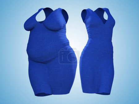 Conceptual fat overweight obese female sweater dress vs slim fit healthy body after weight loss