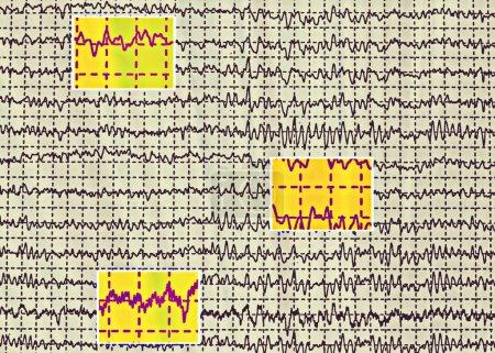 Photo for Brain wave on electroencephalogram EEG for epilepsy - Royalty Free Image