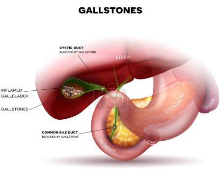 Gallstones in the Gallbladder