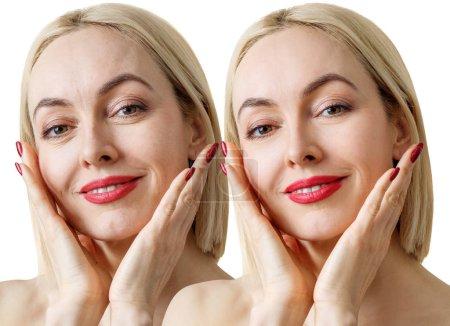 Photo pour Femme sensuelle adulte avant et après le retoucher ou le traitement de la peau. Isolé sur blanc. - image libre de droit