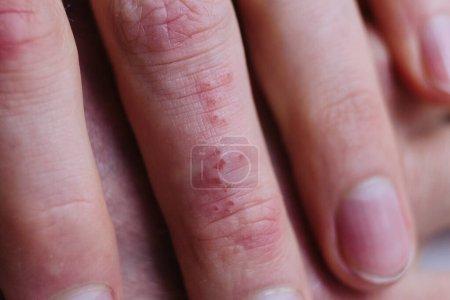 Photo pour Peau de psoriasis. Le psoriasis est une maladie auto-immune qui affecte l'inflammation de la peau cause la peau rouge et écailleuse. - image libre de droit