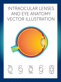 intraocular lenses and eye anatomy vector illustration