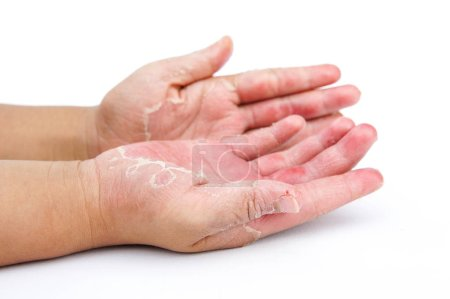 Photo pour Mains sèches, peau, dermatite de contact, infections fongiques, infections cutanées dues à l'exposition - image libre de droit