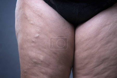 Varicose veins closeup, thick female legs