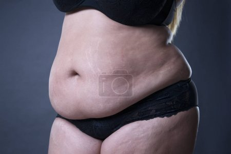 Fat female belly, stretch marks closeup