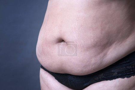 Fat female belly, stretch marks closeup