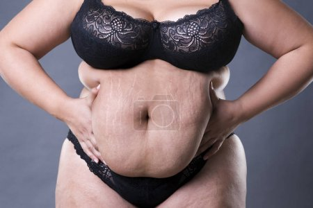 Woman with fat abdomen, overweight female stomach, stretch marks on belly closeup