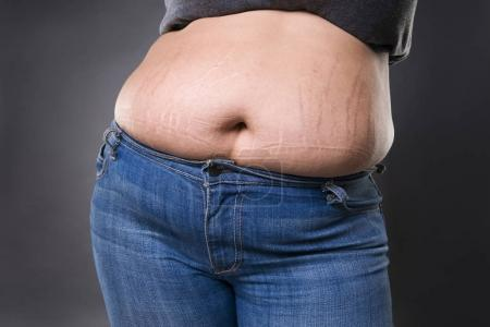 Woman with fat abdomen in blue jeans, overweight female stomach, stretch marks on belly closeup