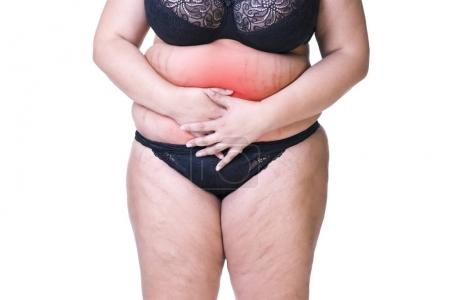 Fat woman with menstrual pain, endometriosis or cystitis, stomach ache, overweight female body isolated on white background