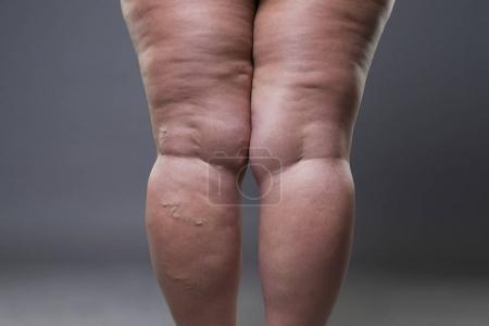 Varicose veins closeup, fat female cellulite legs