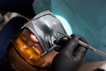 Dentist in black gloves holds tweezers over a patient using a cofferdam. Close-up. Treatment of canals by all rules in modern clinic