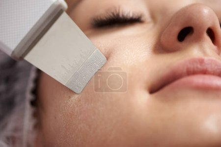 Closeup of an ultrasound facial peeling performed to young woman with false lashes