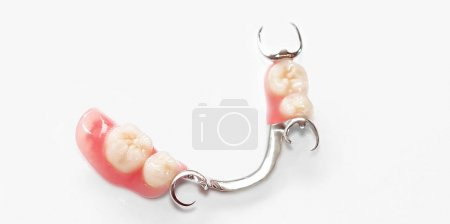 Photo for Chrome-cobalt removable partial denture - Royalty Free Image