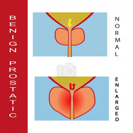 Benign prostatic hyperplasia vector illustration