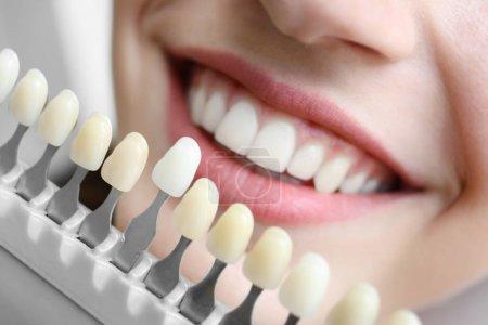 woman choosing color of teeth