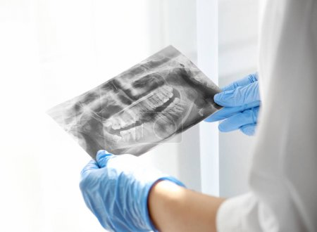 Dentist in gloves teaching radiograph