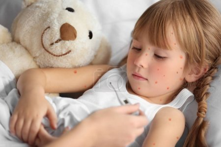 Mother measuring temperature of little girl with red pimples. Chicken pox concept