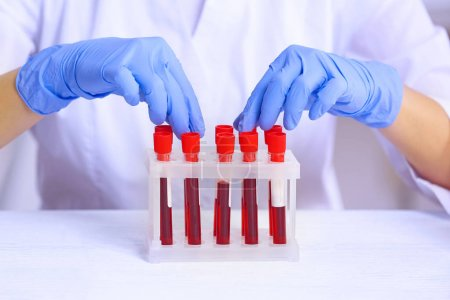 Woman working with blood samples