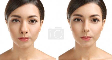 Photo pour Jeune femme avant et après la rhinoplastie sur fond blanc. Concept de chirurgie plastique - image libre de droit