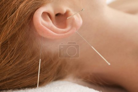 Woman getting acupuncture treatment