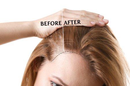 Photo pour Femme avant et après traitement de perte de cheveux sur fond blanc - image libre de droit