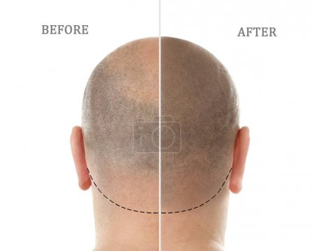 Photo pour Homme avant et après traitement de perte de cheveux sur fond blanc - image libre de droit