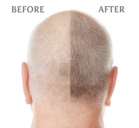 Photo pour Senior homme avant et après traitement de perte de cheveux sur fond blanc - image libre de droit