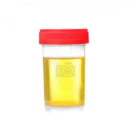 Medical urine test