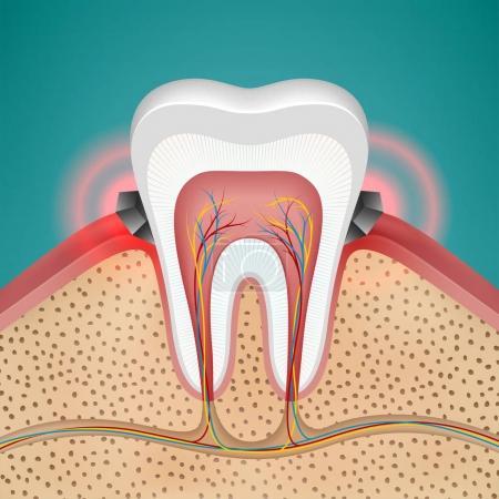 Starting gingivitis on human tooth