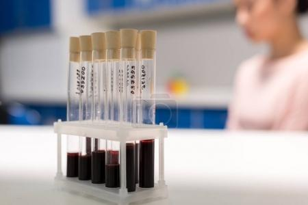 tubes with samples of blood test