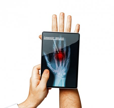 Doctor With Digital Tablet Scans Patient Hand, Modern X-Ray Technology In Medicine And Healthcare Concept