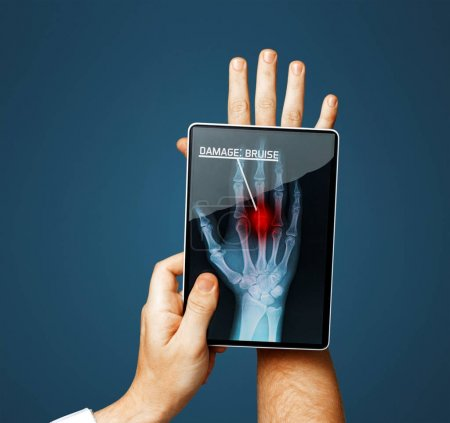 Doctor With Digital Tablet Scans Patient Hand On Blue Background, Modern X-Ray Technology In Medicine And Healthcare Concept