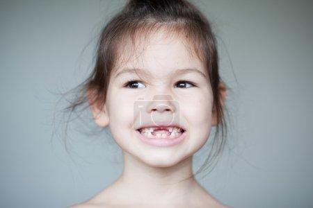 Girl showing off her missing milk teeth