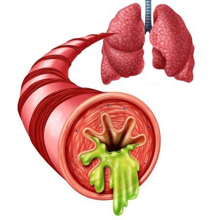 Anatomisches Konzept für Bronchitis