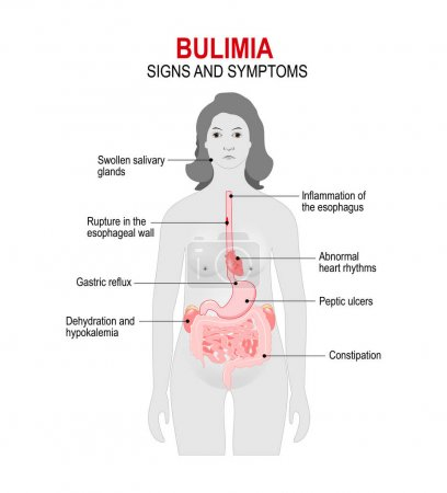 Bulimia is an eating disorder.
