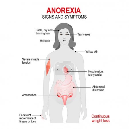 Anorexia nervosa is an eating disorder