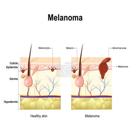 Melanoma or skin cancer.