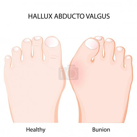 hallux abducto valgus. healthy joint  and bunion