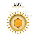 Epstein-Barr virus (EBV). human herpesvirus 4 (HHV...
