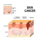 Skin cancer Squamous cell carcinoma basal-cell cancer and Mela