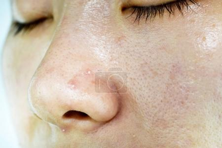 Skin problem with acne diseases, Close up woman face with whitehead pimples on nose, Scar and oily greasy face, Beauty concept.