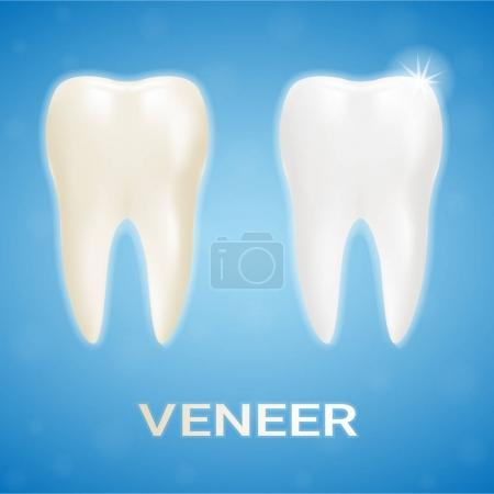 Tooth Veneer Whitening Dental Technician Isolated On A Background. Realistic Vector Illustration.
