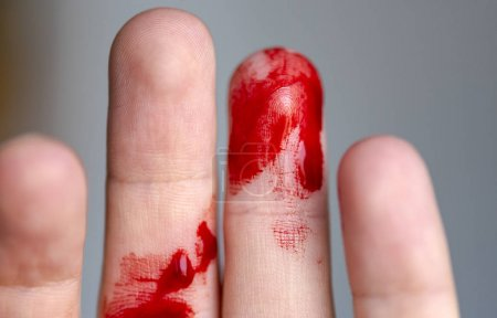 Wounded finger, arm with blood, bleeding